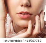 young woman has chapped lips   Shutterstock . vector #415067752