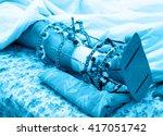 male leg with an ilizarovs... | Shutterstock . vector #417051742