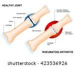 rheumatoid arthritis  ra  is an ...   Shutterstock .eps vector #423536926