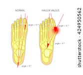 illustration of the normal foot ... | Shutterstock .eps vector #424950562