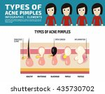 types of anatomy acne pimples... | Shutterstock .eps vector #435730702