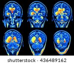 mri scan image of brain | Shutterstock . vector #436489162