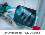 Small photo of tooth and overlapping teeth in X-ray film showing and tweezer against Dentist clinic blur background tweezer