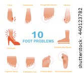 vector of common foot problems | Shutterstock .eps vector #440123782