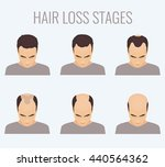 male hair loss stages set. top... | Shutterstock .eps vector #440564362