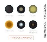 types of cataract  vector....   Shutterstock .eps vector #441266686