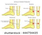 illustration of skeletal ankles ... | Shutterstock .eps vector #444754435