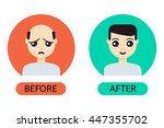 man with alopecia problem... | Shutterstock .eps vector #447355702