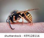Wasp On A Human Hand. The Stin...