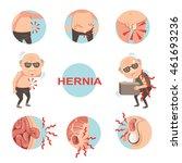 diagram of inside  umbilical... | Shutterstock .eps vector #461693236