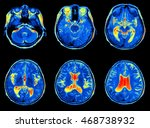mri scan image of brain | Shutterstock . vector #468738932