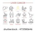 liver cencer symptoms | Shutterstock .eps vector #473580646
