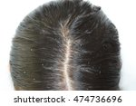 dandruff and greasy hair on the ... | Shutterstock . vector #474736696
