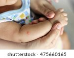 mosquito sucking blood on child ... | Shutterstock . vector #475660165