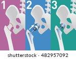 hip replacement arthroplasty...   Shutterstock .eps vector #482957092