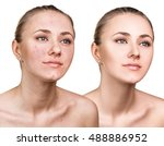 woman with problem skin on her... | Shutterstock . vector #488886952