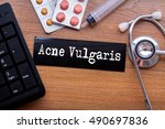 Small photo of Acne Vulgaris words written on label tag with medicine,syringe,keyboard and stethoscope with wood background,Medical Concept