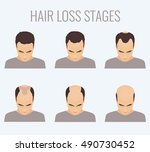 male alopecia stages set. top... | Shutterstock . vector #490730452