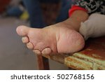 Small photo of Close up of bound foot of a 97 years old Chinese old woman, born in 1919, the last generation that bind the feet of woman