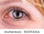 Small photo of Red eye of a woman