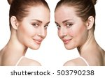 girl with acne before and after ... | Shutterstock . vector #503790238