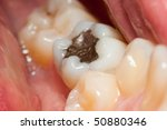 macro of a tooth with amalgam... | Shutterstock . vector #50880346