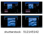 ultrasound picture of carotid... | Shutterstock . vector #512145142