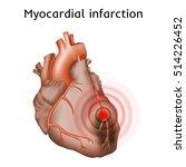 myocardial infarction. heart... | Shutterstock .eps vector #514226452