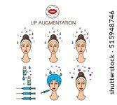 lip augmentation set icons... | Shutterstock .eps vector #515948746