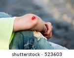 Bleeding Elbow
