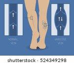vector varicose vein and normal ... | Shutterstock .eps vector #524349298