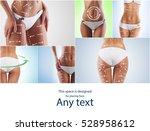 fat lose  liposuction  sport ...   Shutterstock . vector #528958612