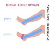 medial ankle sprain. correct... | Shutterstock .eps vector #529179652