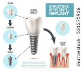 dental implant structure... | Shutterstock .eps vector #531275926