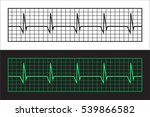 tape cardiogram. two versions... | Shutterstock .eps vector #539866582