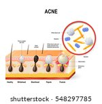 acne vulgaris or pimple. the... | Shutterstock .eps vector #548297785