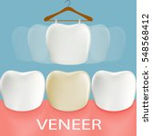dental veneers. tooth anatomy.... | Shutterstock . vector #548568412