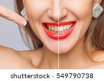 woman teeth before and after... | Shutterstock . vector #549790738