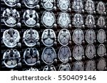 closeup view of a mri head scan ... | Shutterstock . vector #550409146
