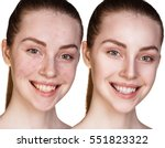 girl with acne before and after ... | Shutterstock . vector #551823322