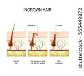 ingrown hair after hair removal ... | Shutterstock .eps vector #555449872