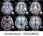 closeup view of a mri head scan ... | Shutterstock . vector #556218022