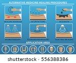 medical therapy procedures set. ... | Shutterstock .eps vector #556388386