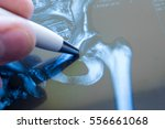 x ray of hip joint. doctor... | Shutterstock . vector #556661068