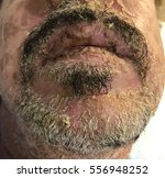 stevens johnson syndrome in a... | Shutterstock . vector #556948252