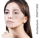square parts shows before skin...   Shutterstock . vector #556971502