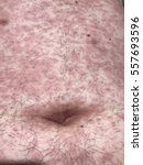 Small photo of Erythematous skin rash at abdominal wall in the of acute HIV infection.