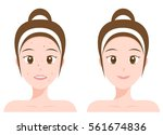 face with acne and without acne ... | Shutterstock .eps vector #561674836