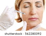 hyaluronic acid injection for... | Shutterstock . vector #562280392