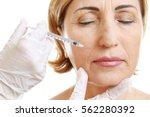hyaluronic acid injection for... | Shutterstock . vector #562280392